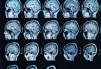 Imagem por ressonância magnética do cérebro.
