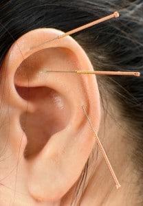 """""""A auricoloterapia vai atuar da mesma forma que a acupuntura, tentando promover o equilíbrio das energias Yin e Yang."""""""
