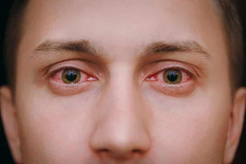 Olhos vermelhos de homem branco.