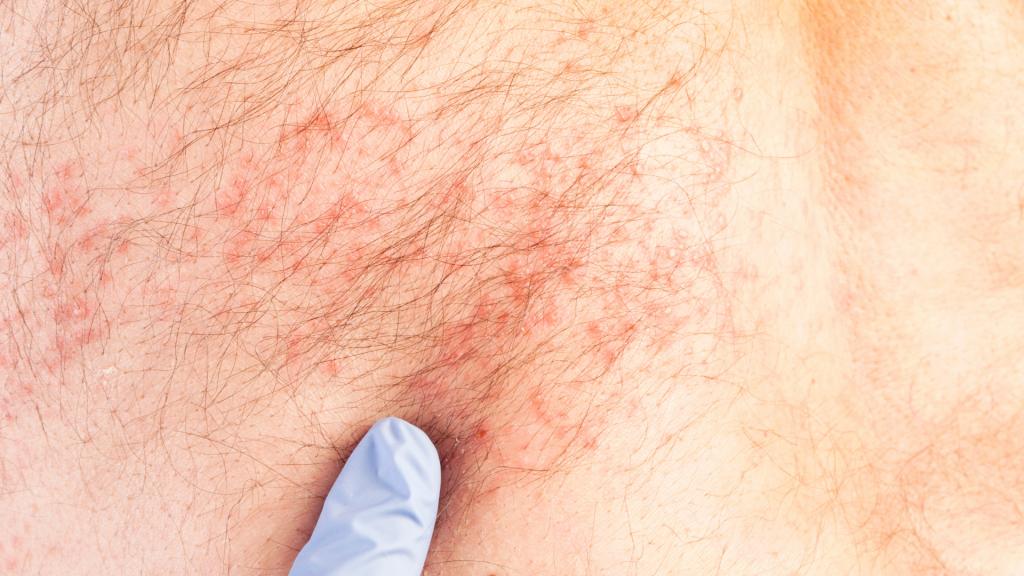 Recorte de uma foto que mostra a pele humana com eczema.