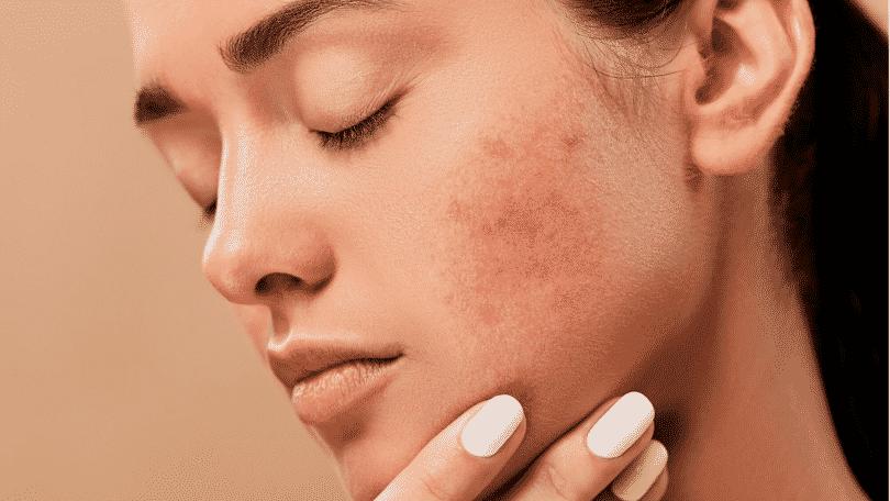 Mulher com problema de acne no rosto
