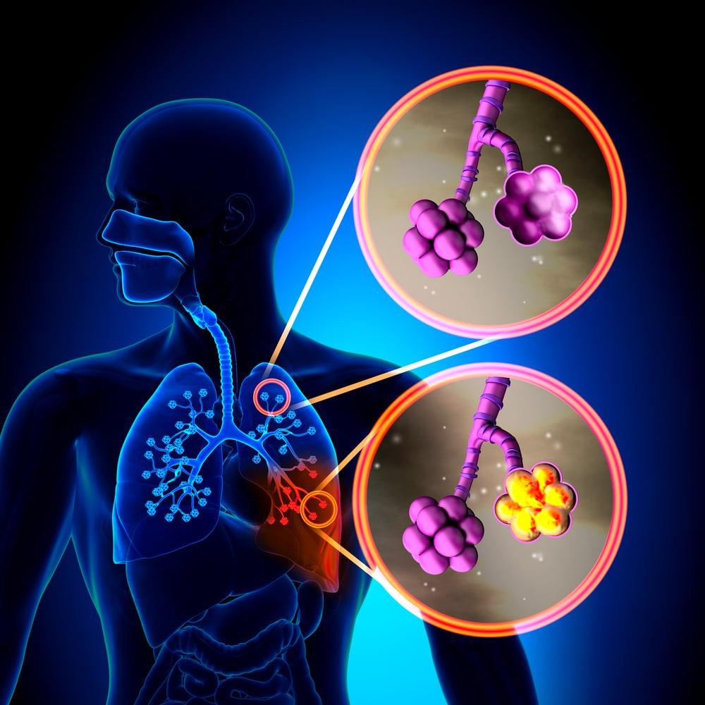 Ilustração de um corpo humano indicando os pulmões.