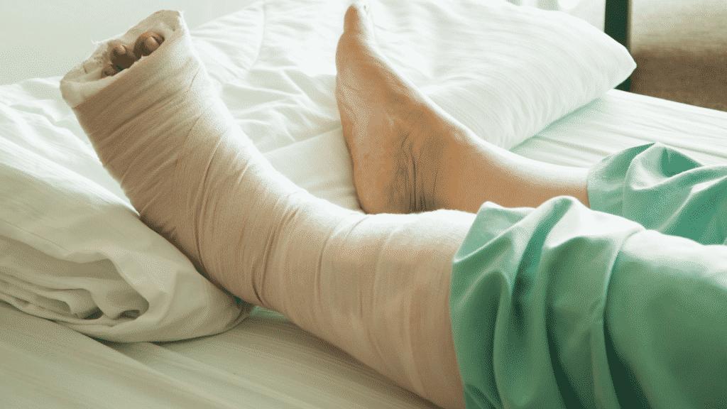 Pessoa com o pé quebrado deitada na maca do hospital