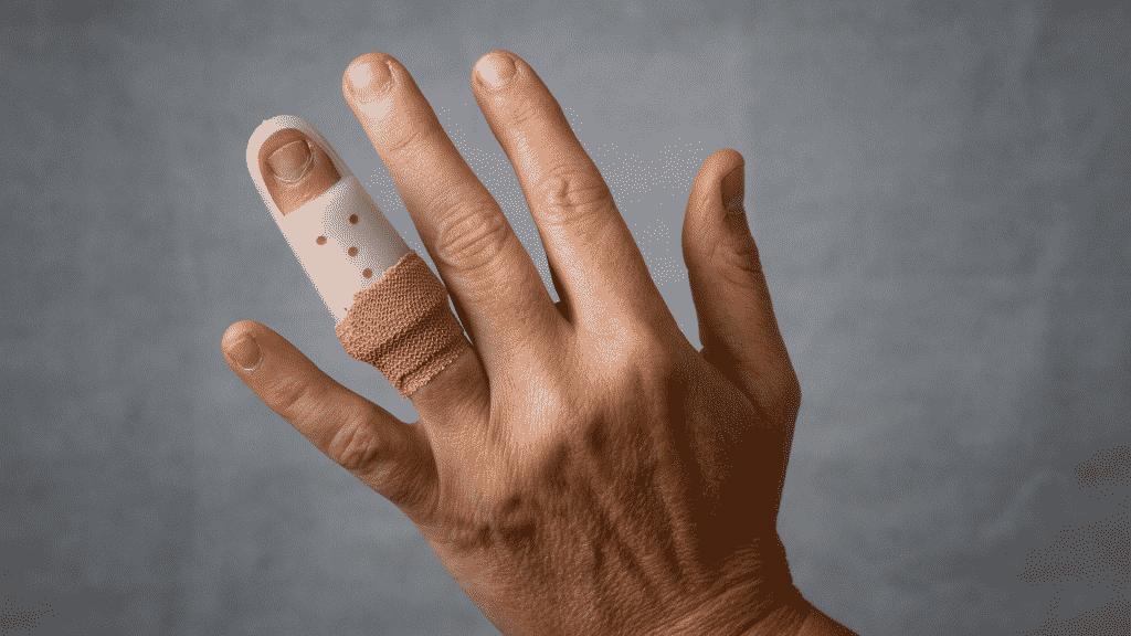 Mão de pessoa com dedo anelar quebrado usando tala