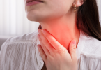 Imagem de uma mulher com dor de garganta