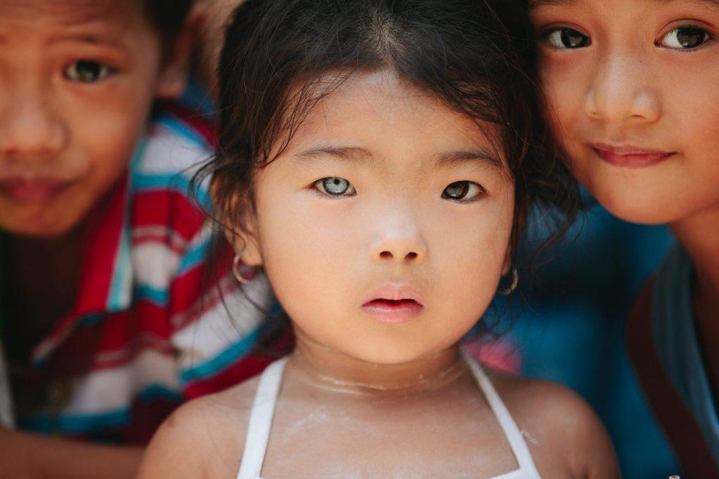 Menina asiática com um olho azul e outro castanho.