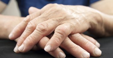 Hand Of Woman Deformed From Rheumatoid Arthritis ** Note: Shallow depth of field