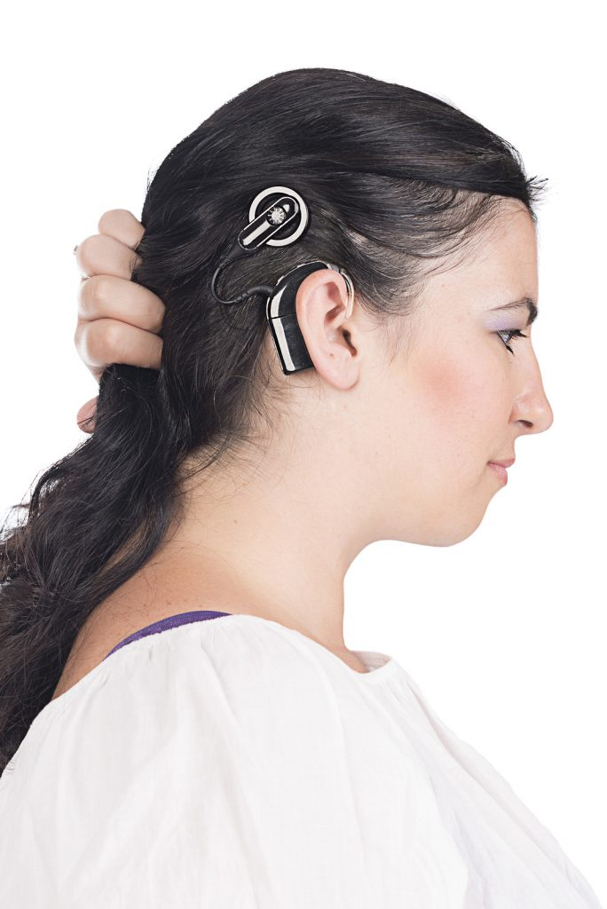 young deaf or hearing impaired woman showing her cochlear implant