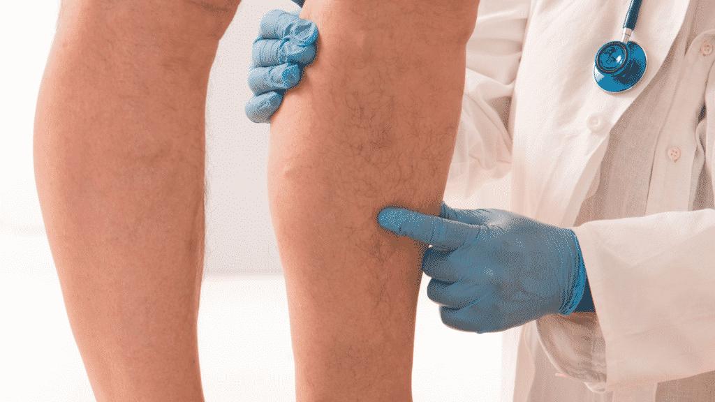 Homem com inchaço na perna no médico