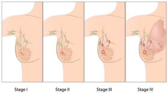 sinais de câncer de mama
