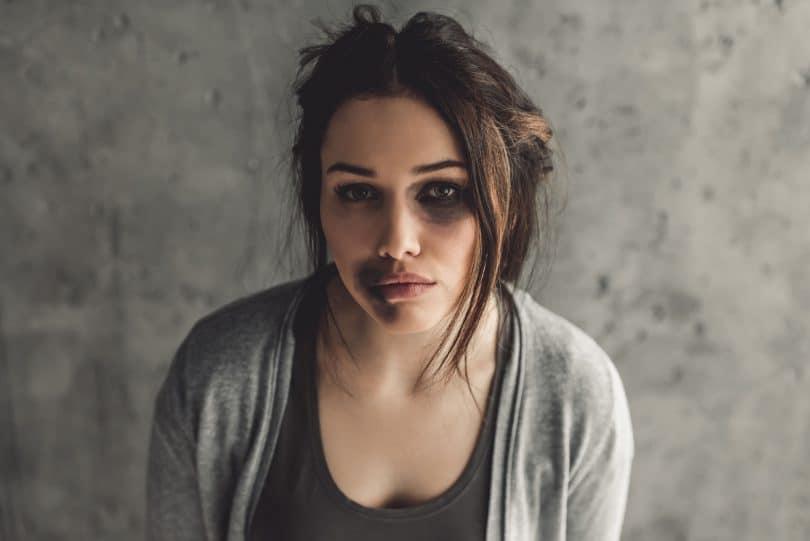 Mulher com o semblante triste. Ela está com um olho roxo e algumas manchas roxas próximo a boca demonstrando sinais de que foi agredida.