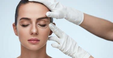 Mulher branca, jovem, tendo o rosto marcado com caneta, com indicações de cirurgia plástica.