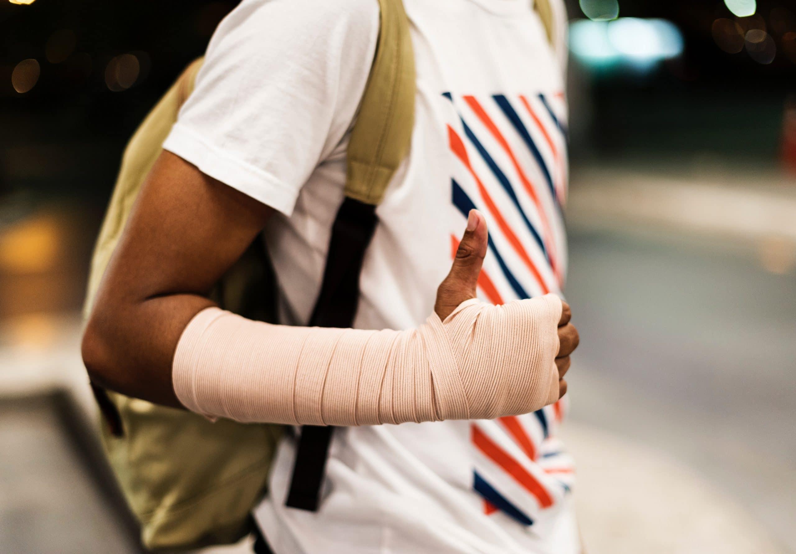 Homem com o braço engessado fazendo sinal de positivo.