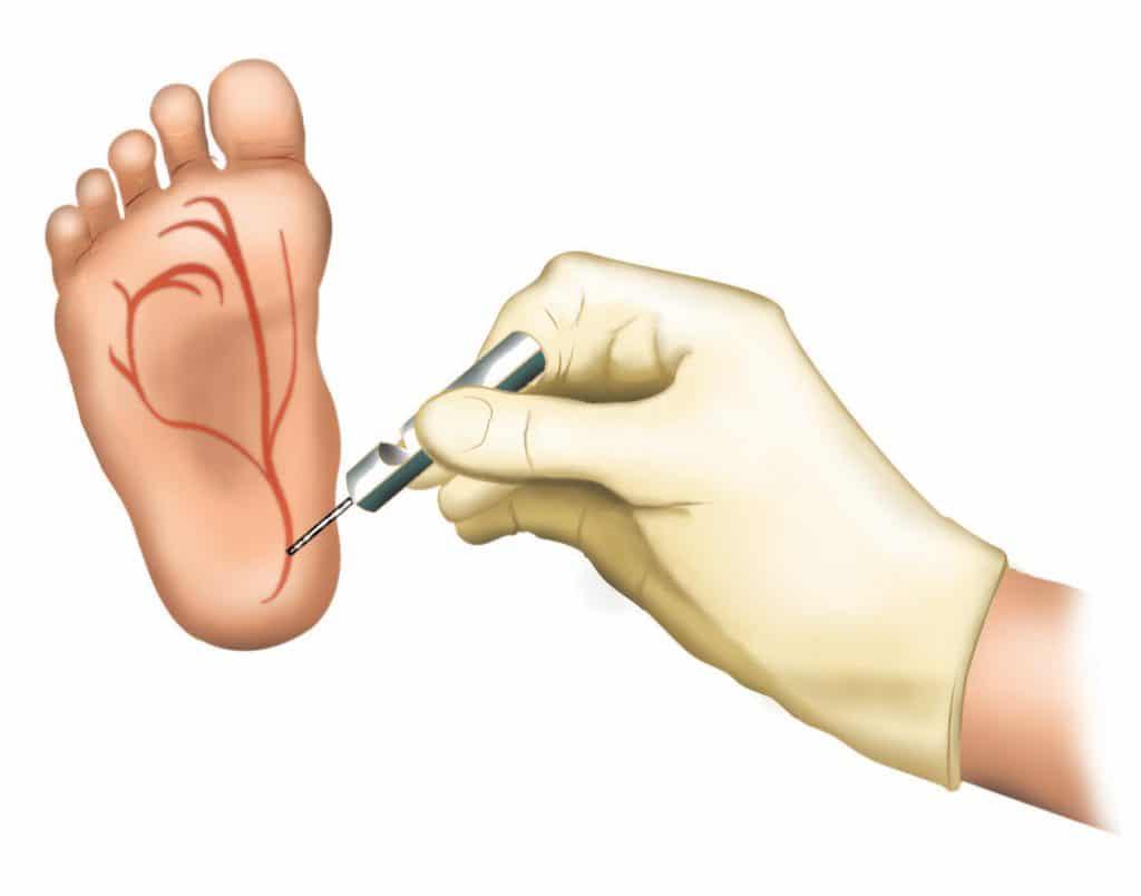 Ilustração de um pé de bebê marcando as veias por onde é recolhido o teste do pezinho.