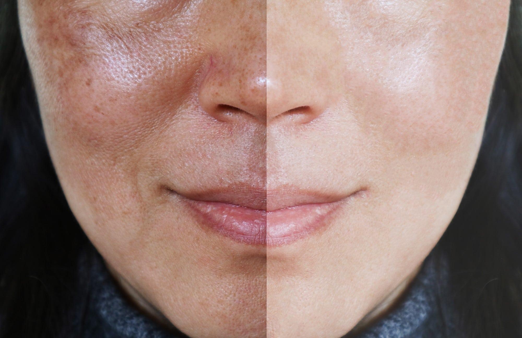 Rosto dividido em antes e depois com melasma
