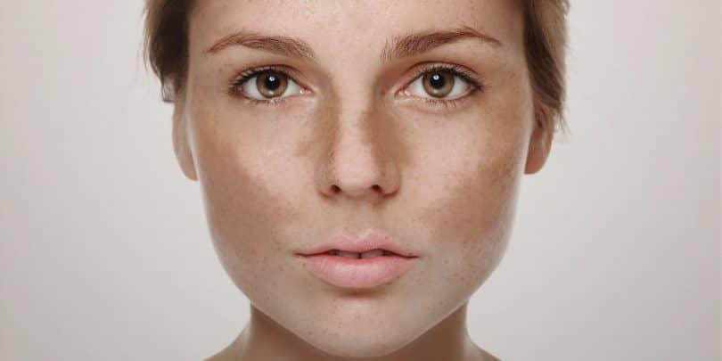 Rosto de mulher com melasma