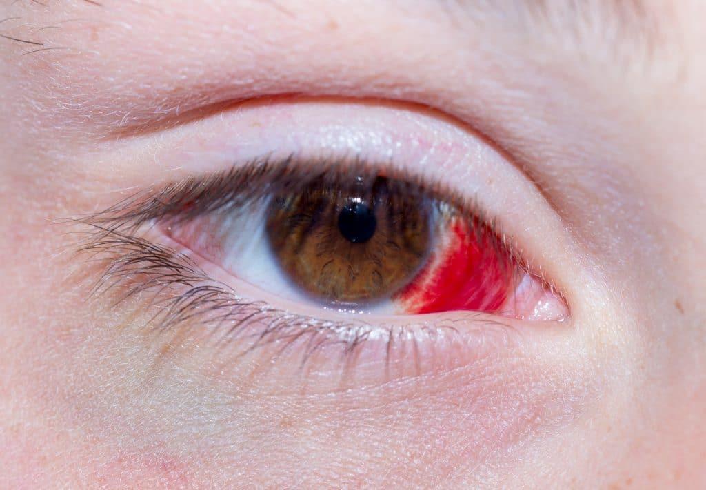 Olho de uma pessoa. Ele está com um hematoma interno na cor vermelha, como se fosse um sangue pisado.