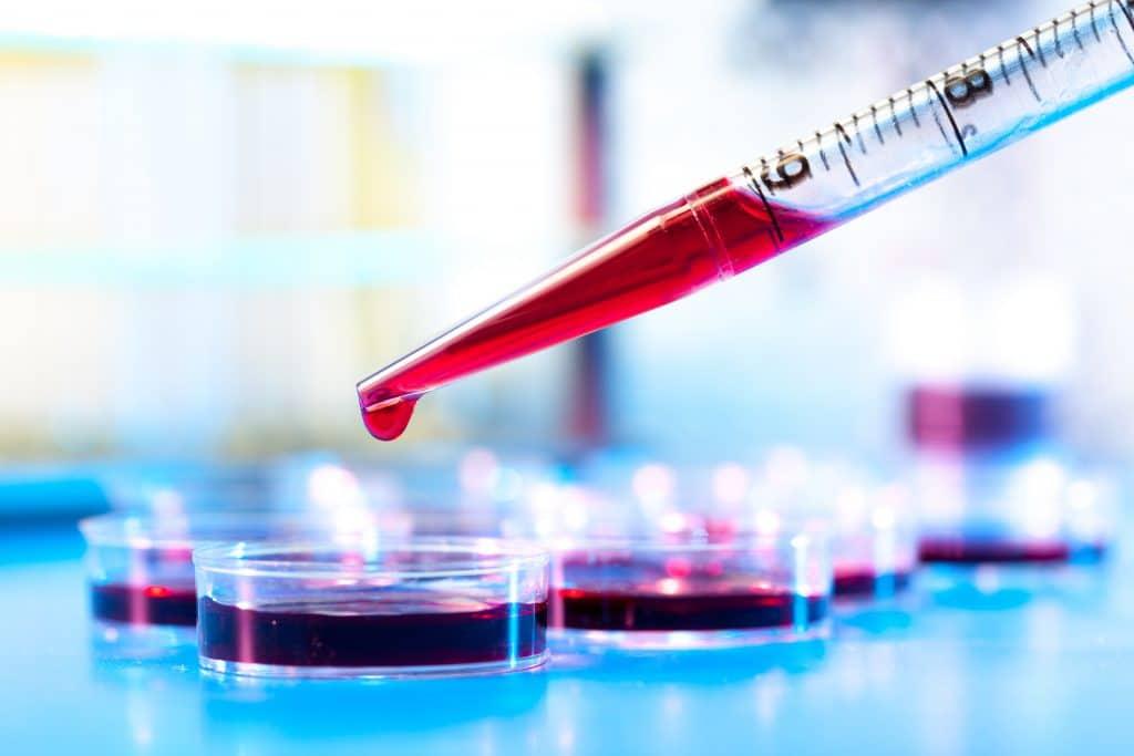 Conta gotas com sangue. O sangue está sendo depositado em vários recipientes para análise.