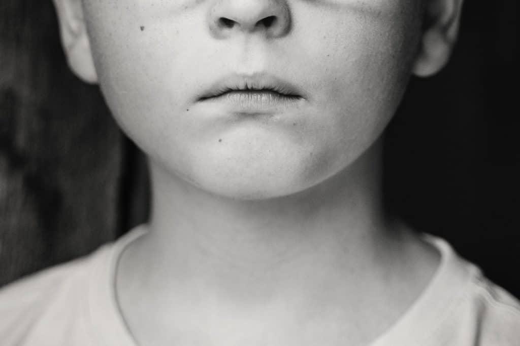 Foto em preto e branco de parte do rosto e pescoço de uma criança, que está séria.