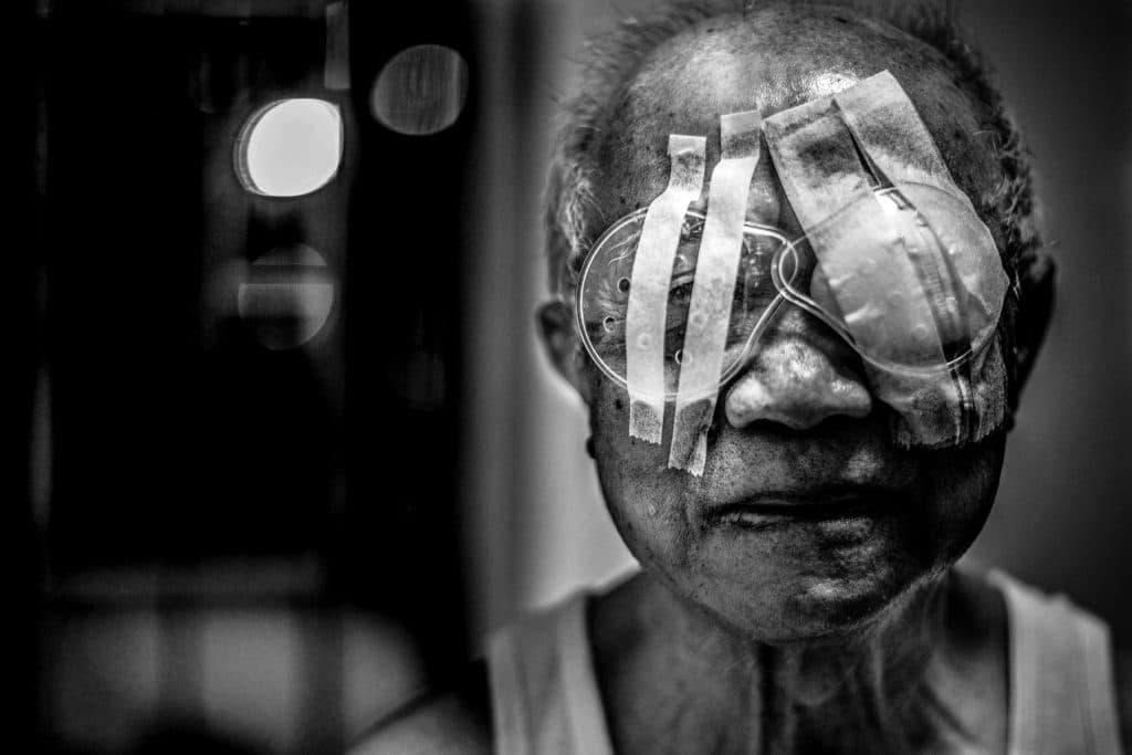 Homem com olhos operados pós-cirurgia