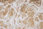 Imagem de água suja e barrosa
