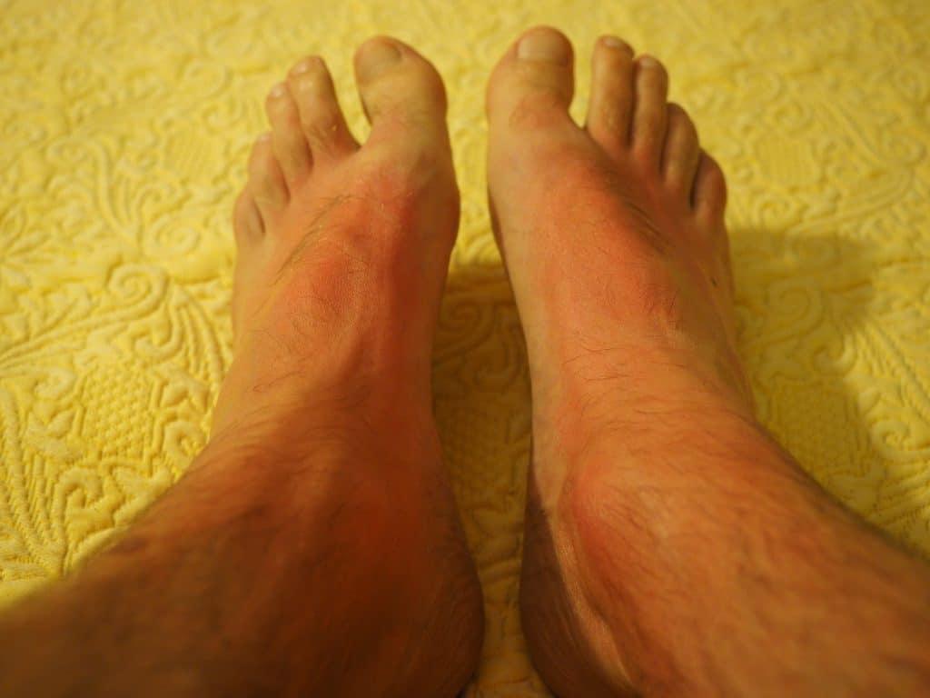 Imagem de dois pés masculinos apresentando queimadura solar de primeiro grau.