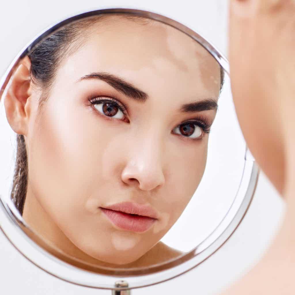 Imagem do rosto de uma mulher, manchado devido à doença do vitiligo. A imagem dela está refletida em um espelho.