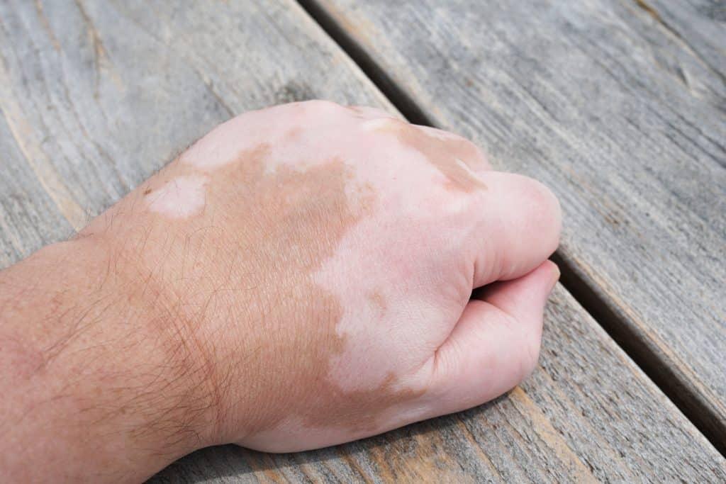 Imagem da mão de um homem manchada devido a doença do vitiligo.