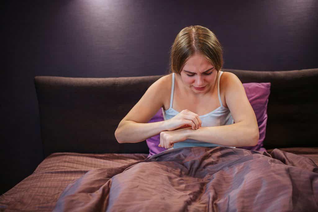 Imagem de uma mulher em seu quarto, sentada em sua cama. Ela está coçando o seu braço.