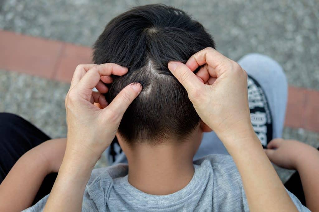 Imagem de uma criança de costas sentada no colo da mãe. A mãe está olhando a cabeça do garoto em busca de piolho.