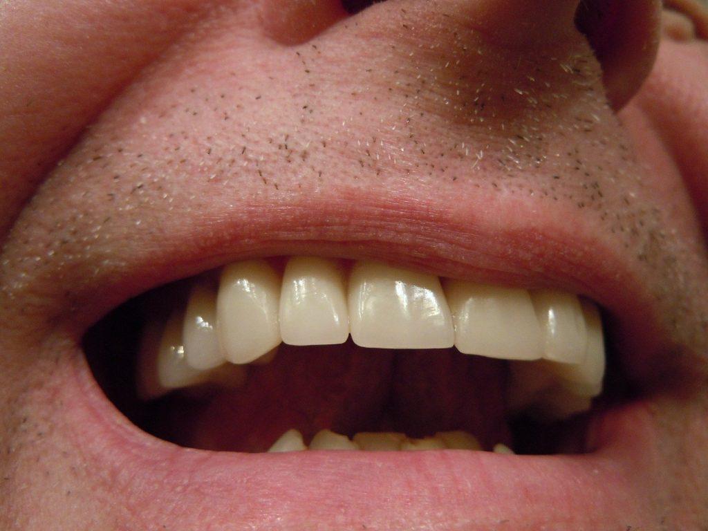 Imagem de um sorriso masculino mostrando os dentes brancos.