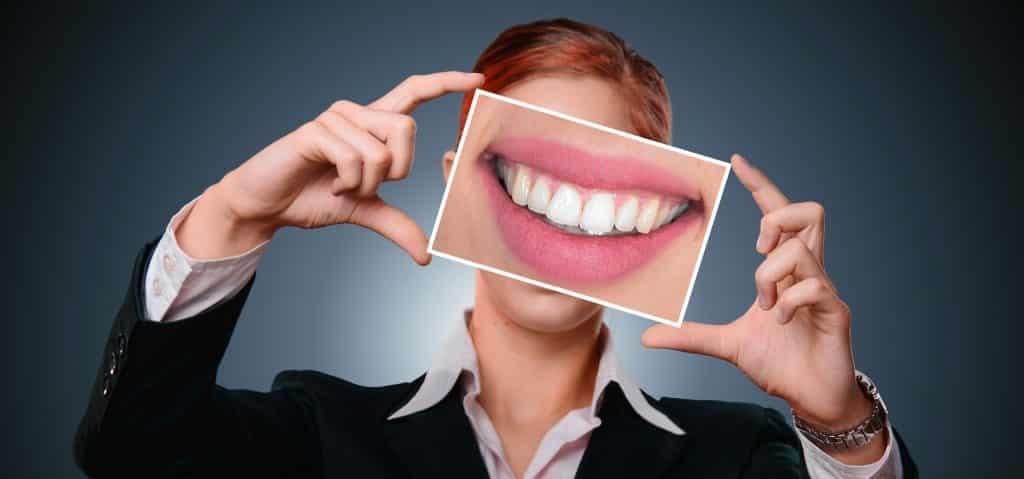 Imagem de uma mulher segurando na frente do seu rosto a foto de uma boca sorrindo e mostrando os lindes dentes branquinhos.