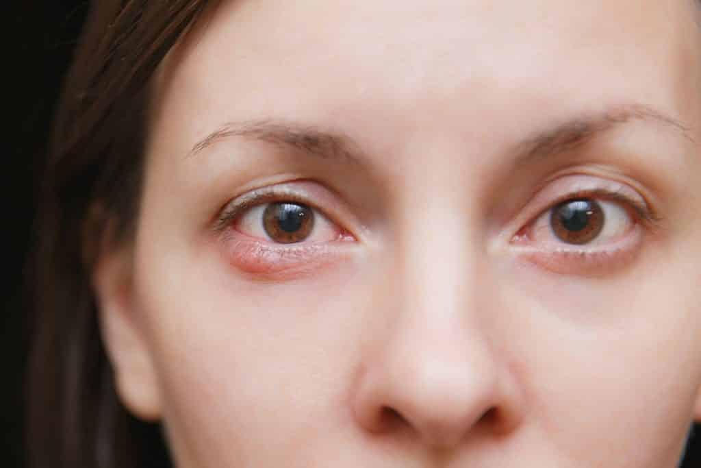 Close nos olhos de uma mulher branca, um dos olhos com terçol.