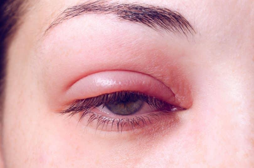 Olho de mulher branca com terçol.