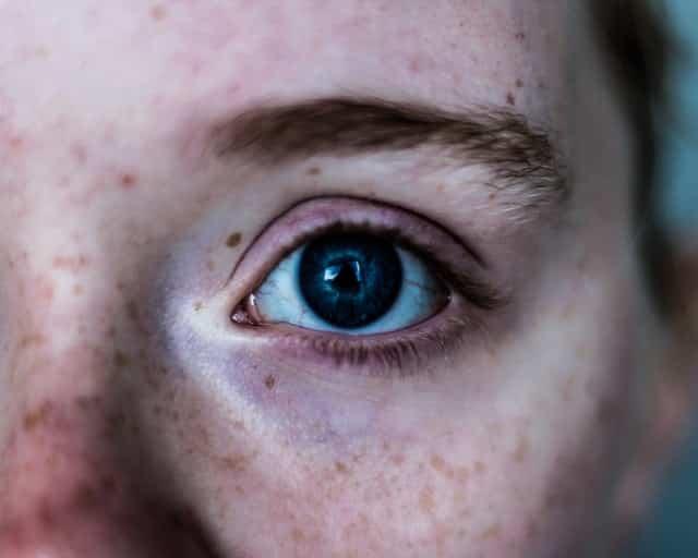 Olho azul visto de perto com rosto com sardas