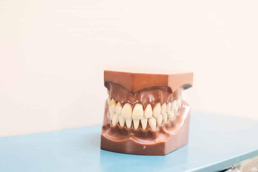 Molde de arcada dentária.