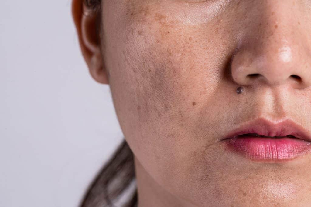 Mulher com verruga e cicatrizes de acne na pele
