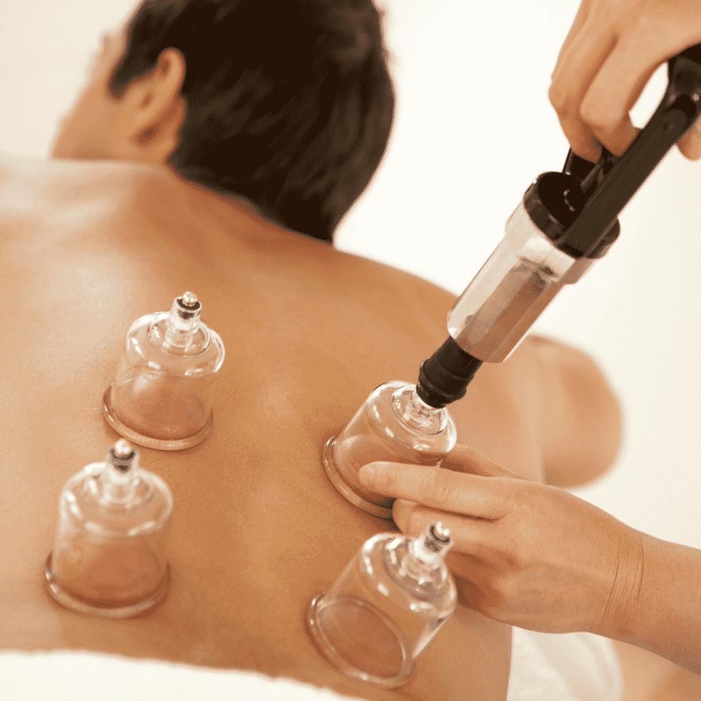 Terapeuta aplicando ventosas de acrílico em paciente