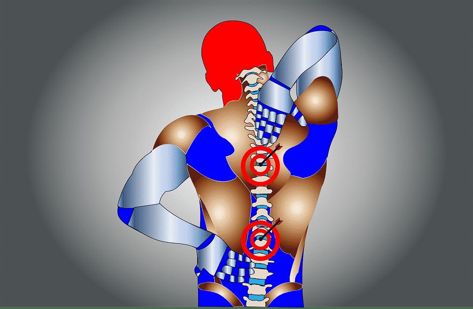 Imagem ilustrativa de uma pessoa com dor na coluna