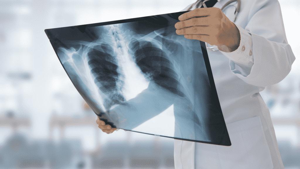 Médico segurando raio-x de pulmão