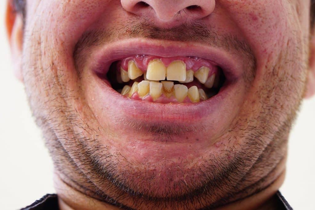 Imagem da boca de um homem. Ele está mostrando os dentes que estão estragados.