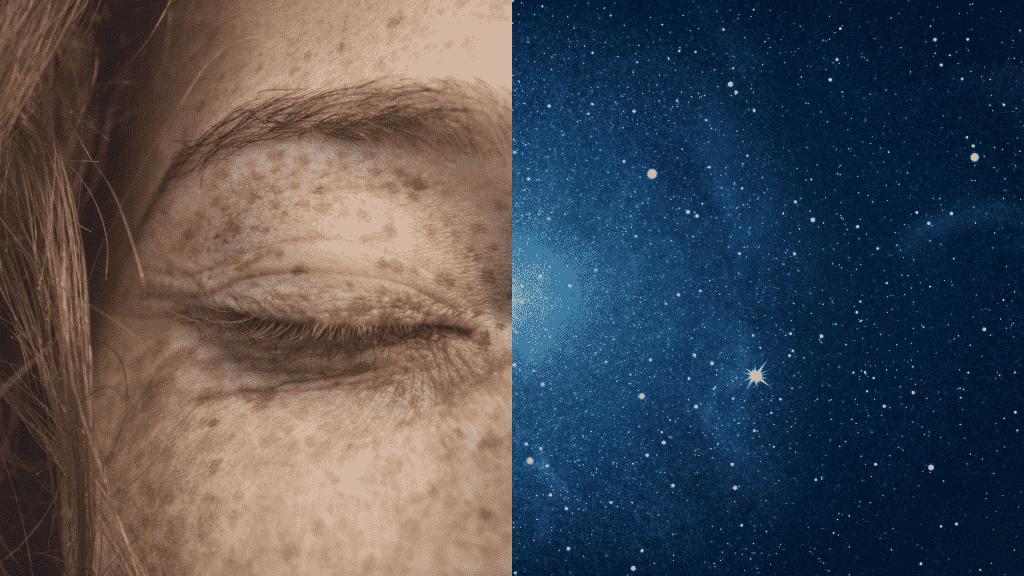 Sardas no rosto sendo comparadas ao céu estrelado