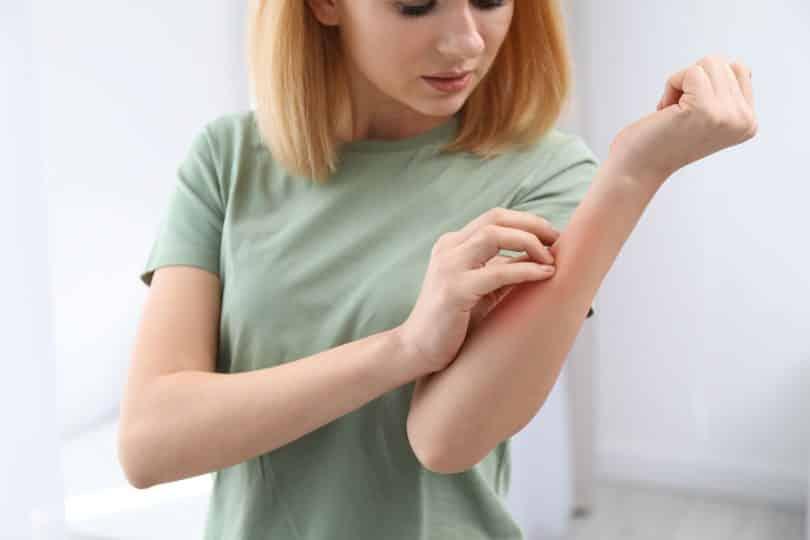 Mulher branca coçando o braço.