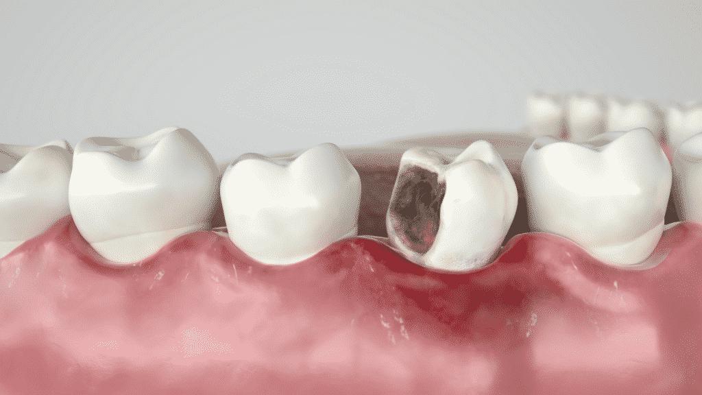 Imagem ilustrativa de uma cárie no dente