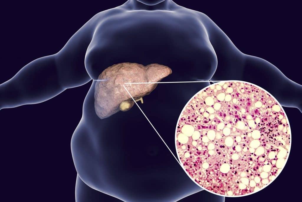 Close em fígado de um corpo obeso.