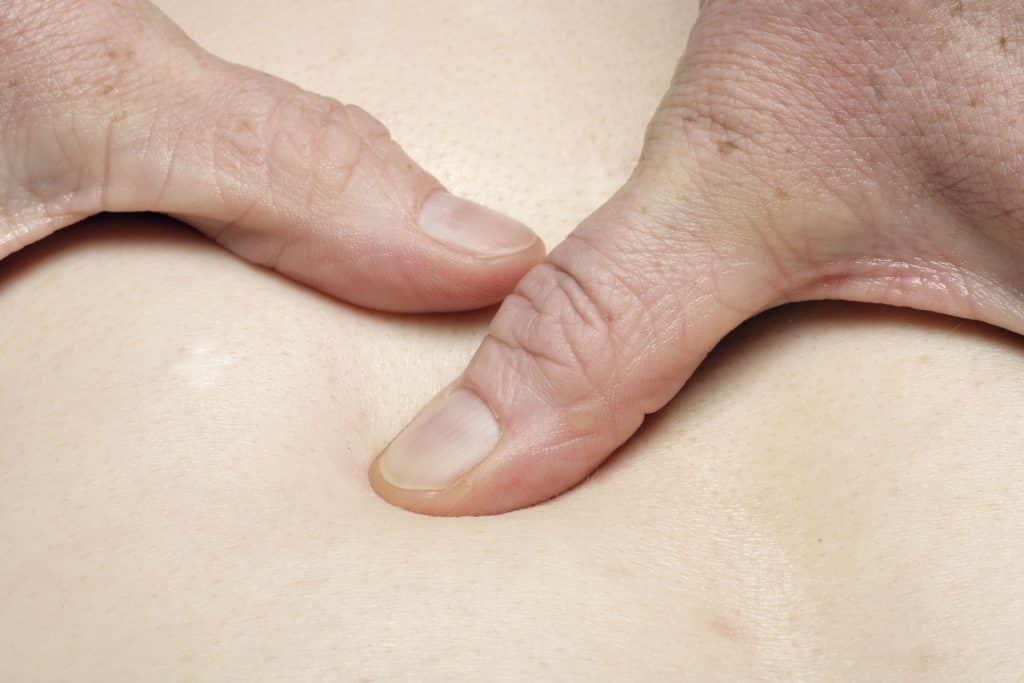 Imagem das costas de uma pessoa recebendo massagem de quiropraxia das mãos de uma outra pessoa.