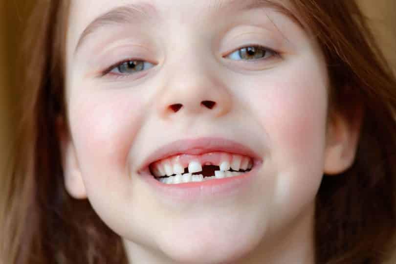 Menina sorri mostrando que está sem o dente da frente.