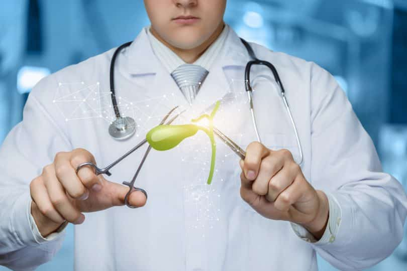 O conceito de tratamento cirúrgico da vesícula biliar. O médico com a vesícula biliar no fundo desfocado.