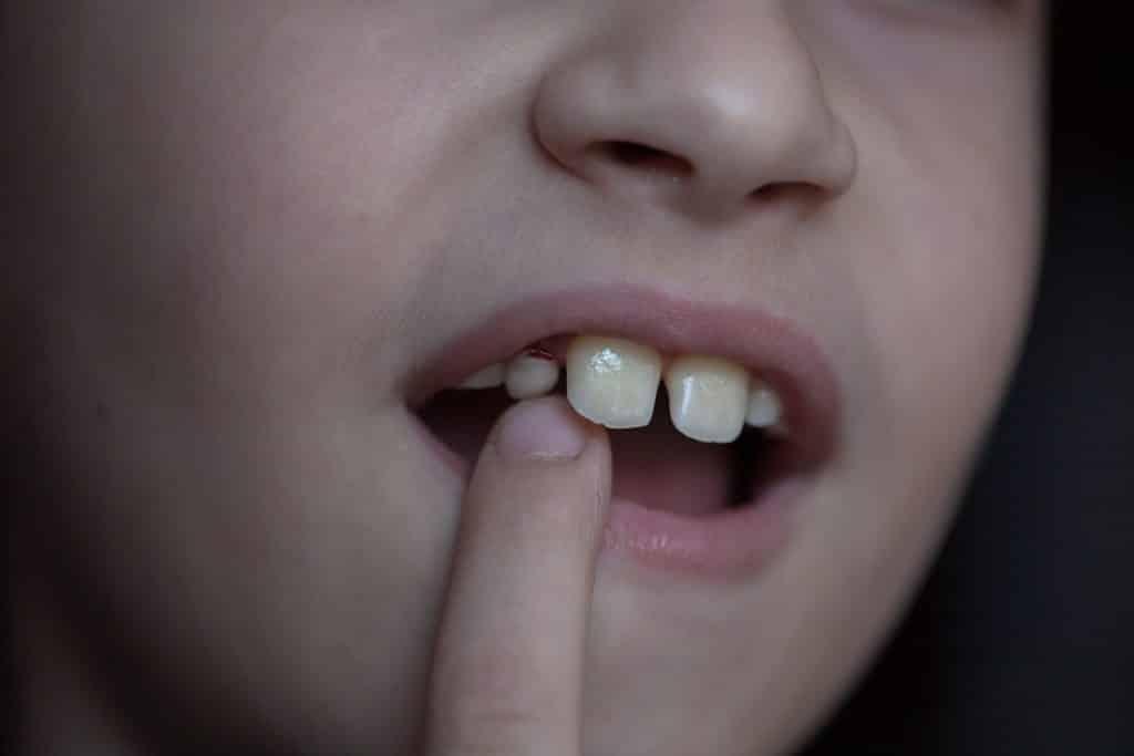 Menina mexendo no dente mole