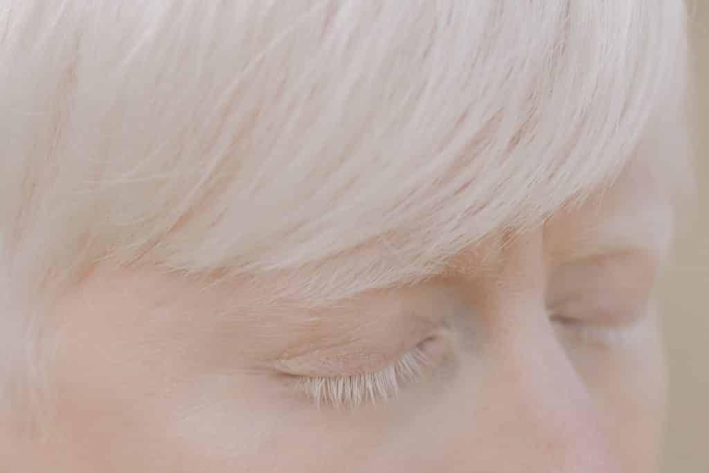 Imagem aproximada dos olhos e cabelos de uma pessoa albina